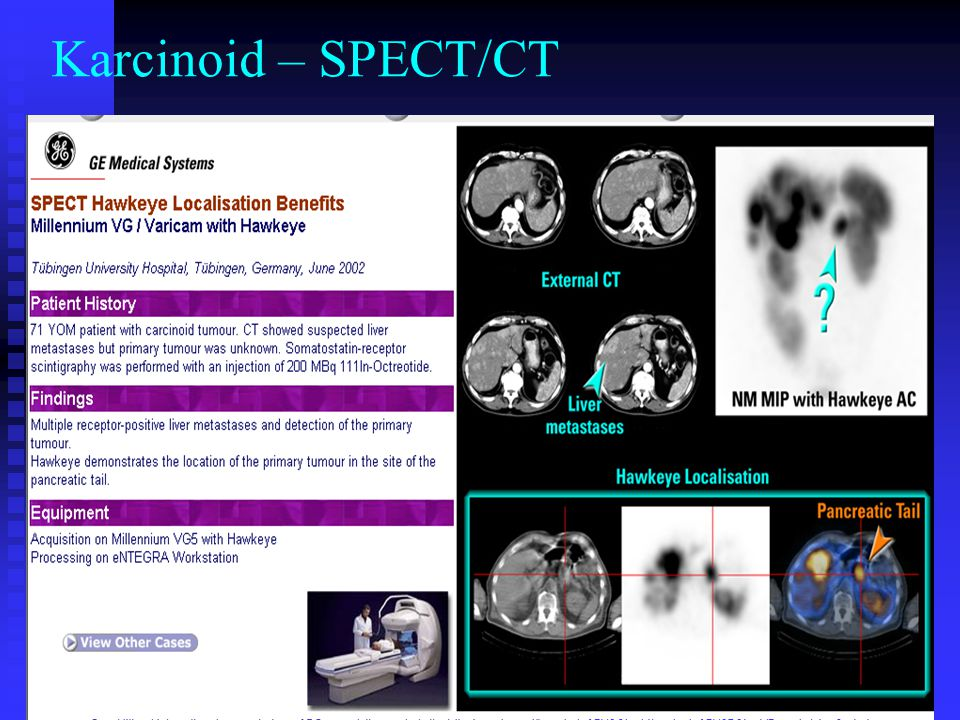 Karcinoid – SPECT/CT