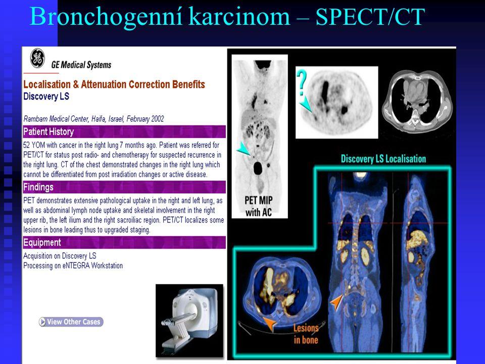 Bronchogenní karcinom – SPECT/CT