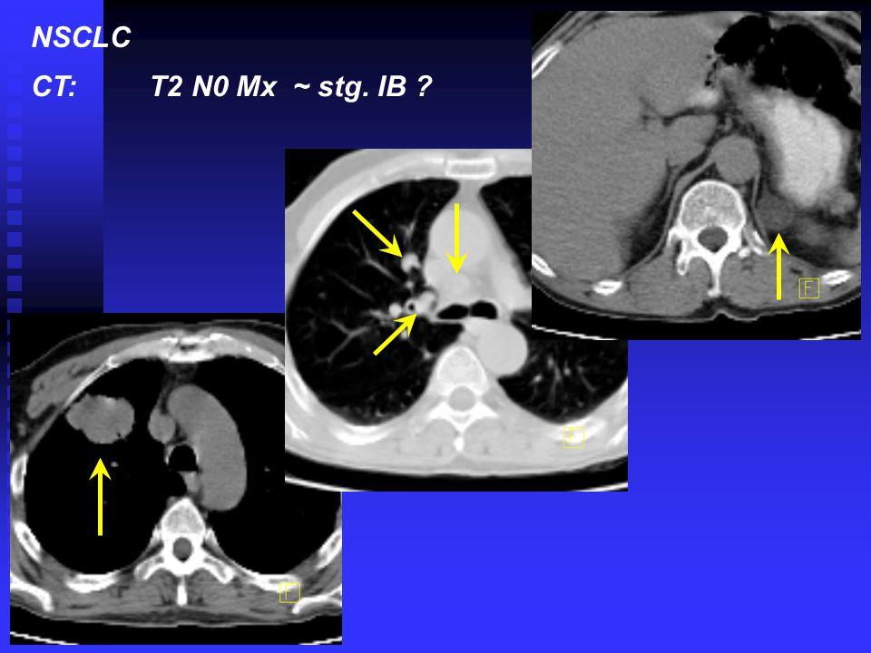 NSCLC CT: T2 N0 Mx ~ stg. IB