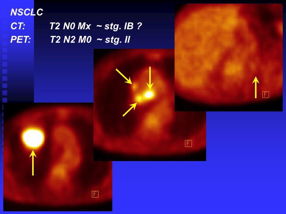 NSCLC CT: T2 N0 Mx ~ stg. IB PET: T2 N2 M0 ~ stg. II