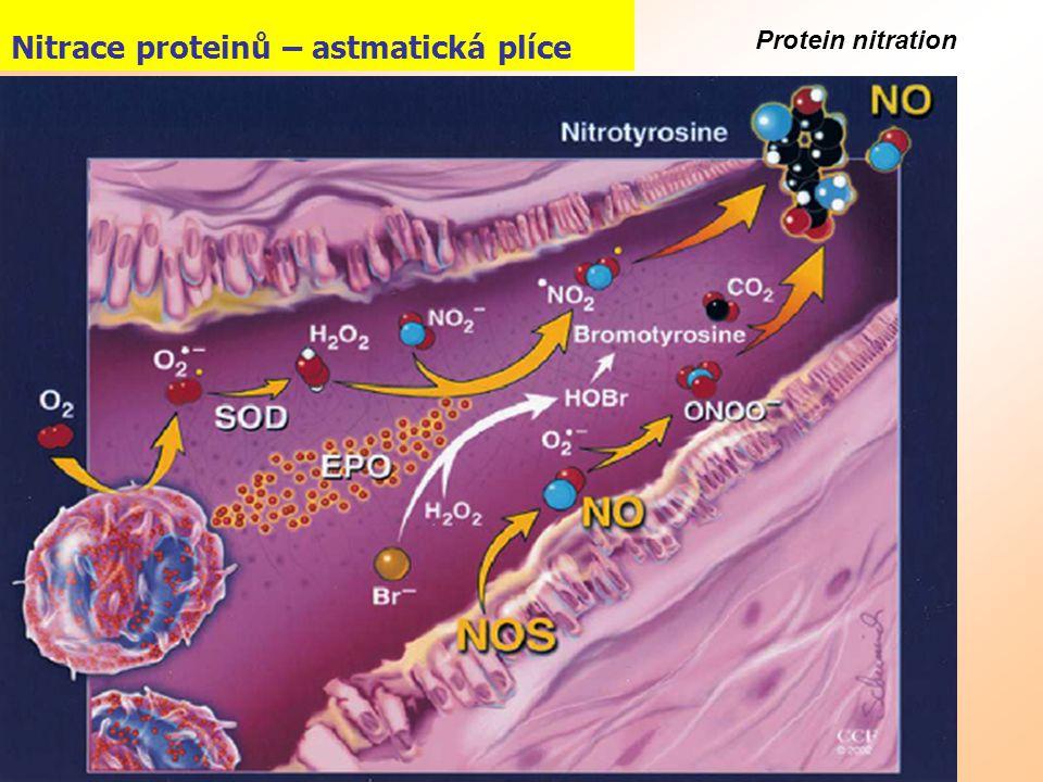 Nitrace proteinů – astmatická plíce