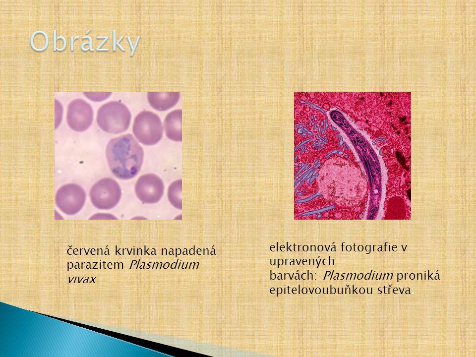 Obrázky elektronová fotografie v upravených barvách: Plasmodium proniká epitelovoubuňkou střeva.