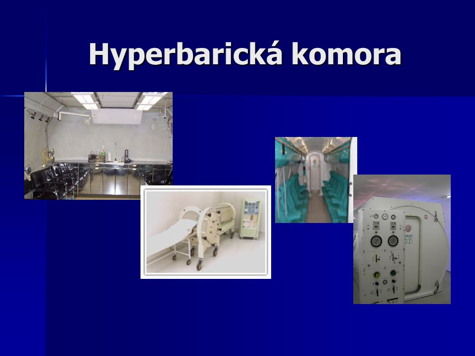Hyperbarická komora