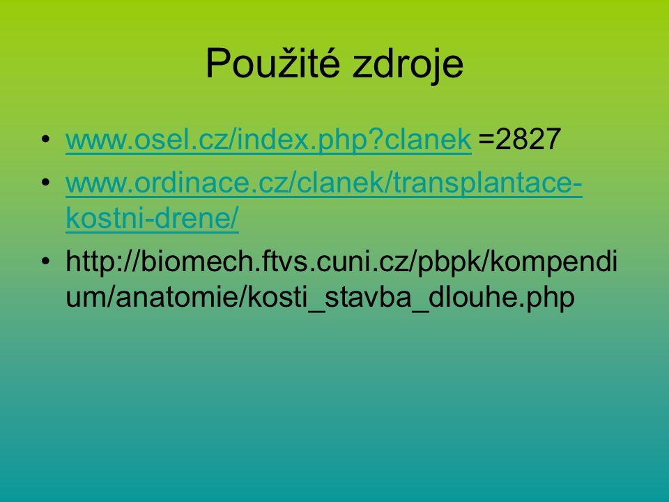 Použité zdroje www.osel.cz/index.php clanek =2827