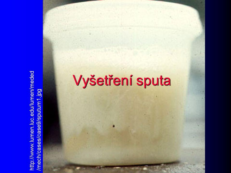 Vyšetření sputa http://www.lumen.luc.edu/lumen/meded/mech/cases/case9/sputum1.jpg