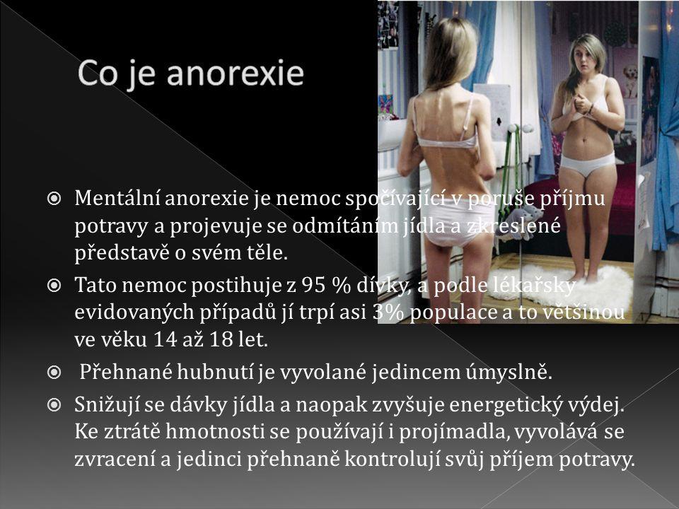 Co je anorexie Mentální anorexie je nemoc spočívající v poruše příjmu potravy a projevuje se odmítáním jídla a zkreslené představě o svém těle.
