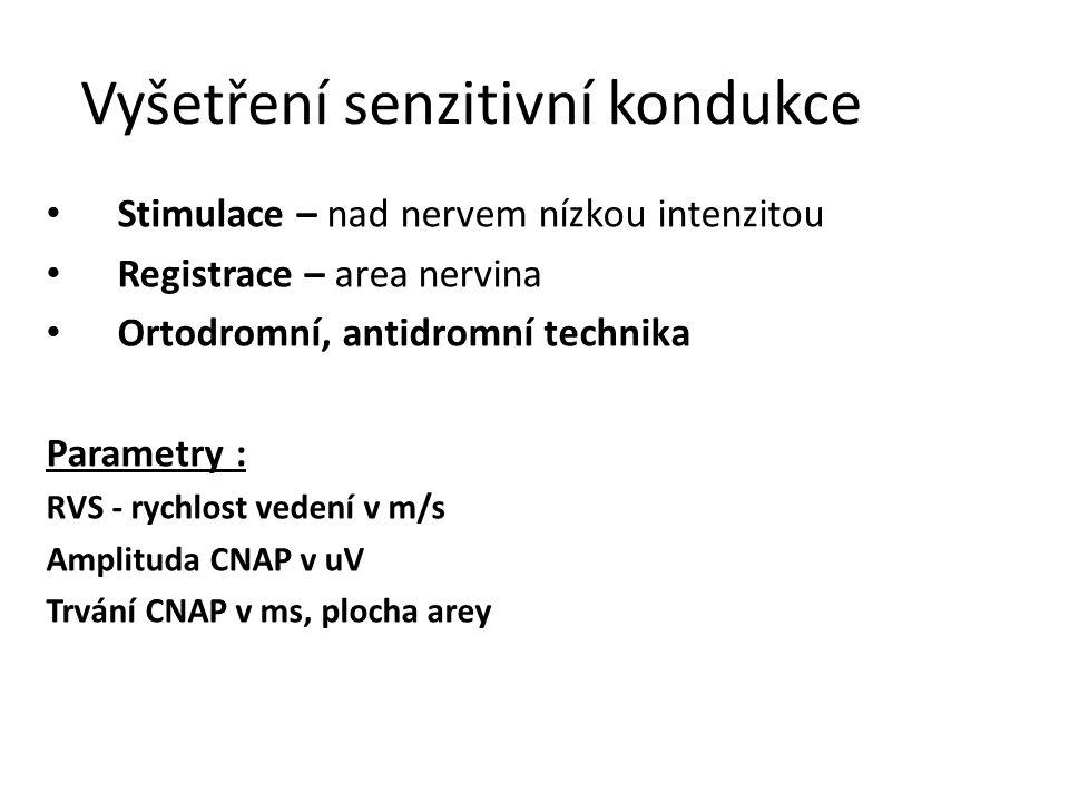 Vyšetření senzitivní kondukce