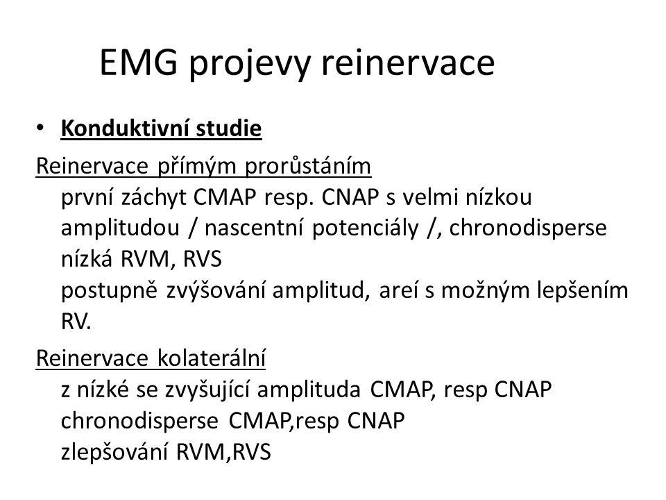 EMG projevy reinervace