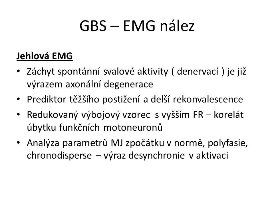 GBS – EMG nález Jehlová EMG