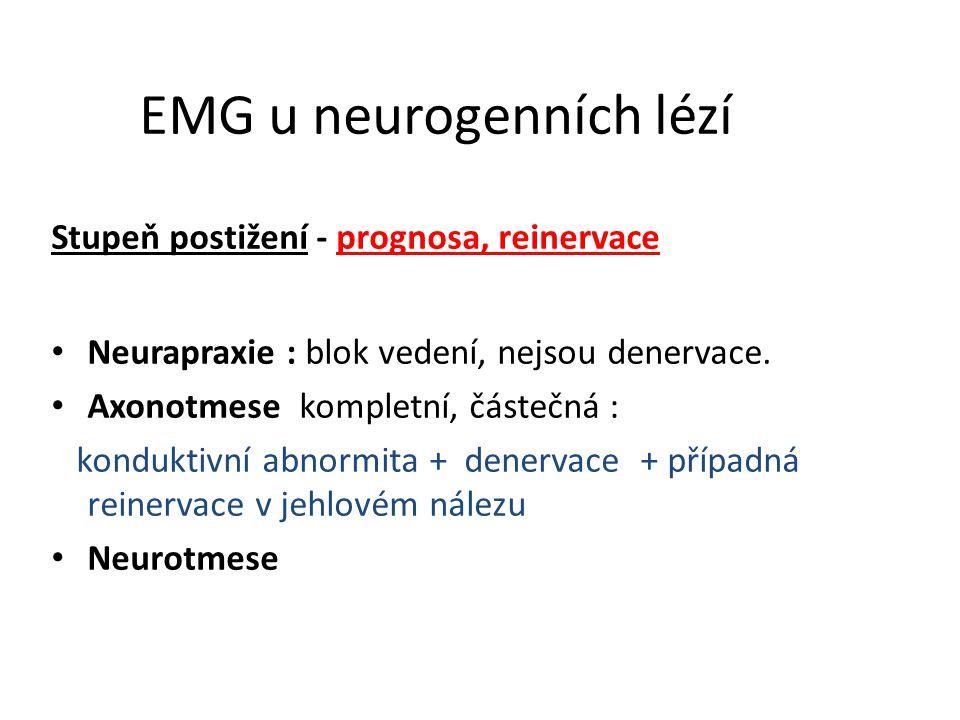 EMG u neurogenních lézí