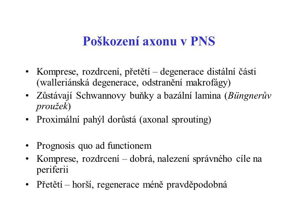Poškození axonu v PNS Komprese, rozdrcení, přetětí – degenerace distální části (walleriánská degenerace, odstranění makrofágy)