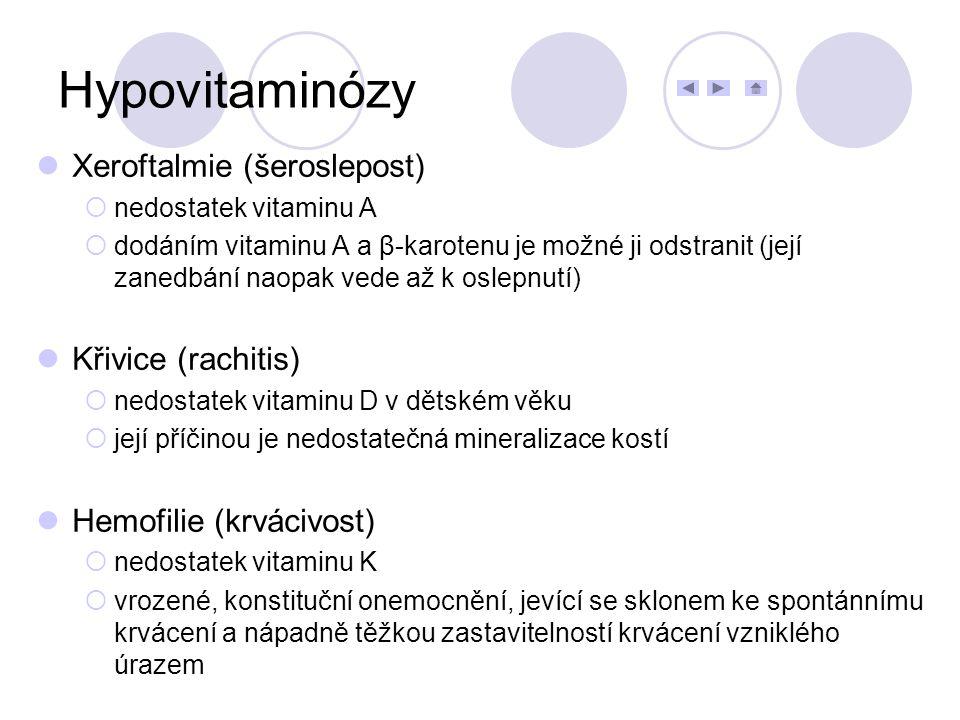Hypovitaminózy Xeroftalmie (šeroslepost) Křivice (rachitis)