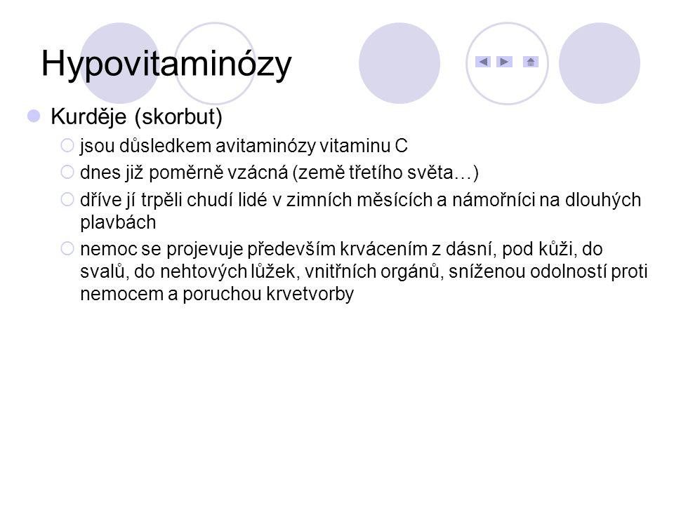 Hypovitaminózy Kurděje (skorbut) jsou důsledkem avitaminózy vitaminu C