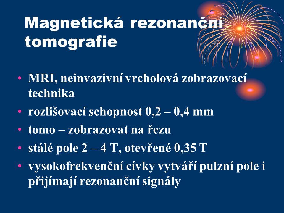 Magnetická rezonanční tomografie