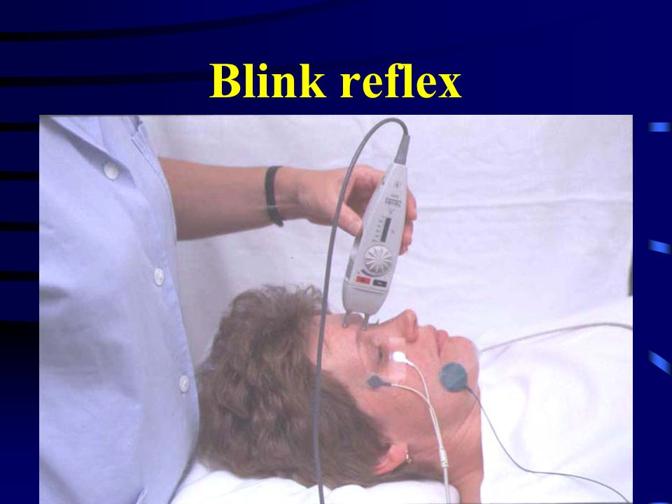 Blink reflex CMT neuropatie