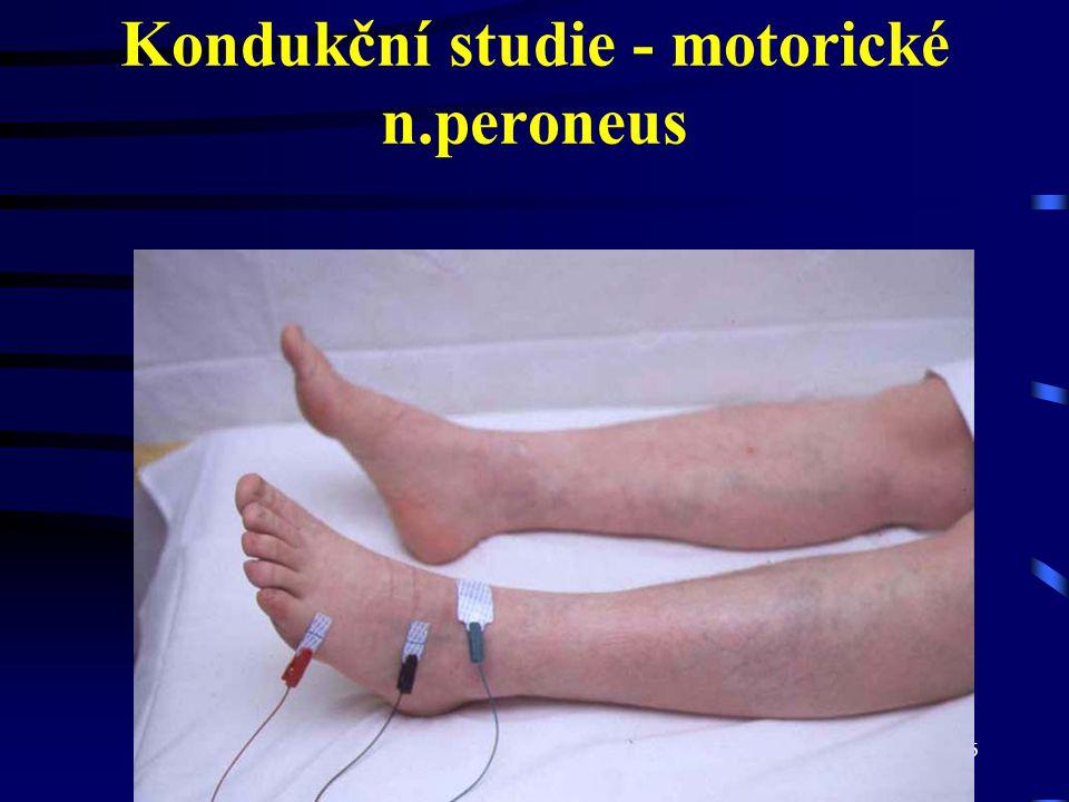 Kondukční studie - motorické n.peroneus
