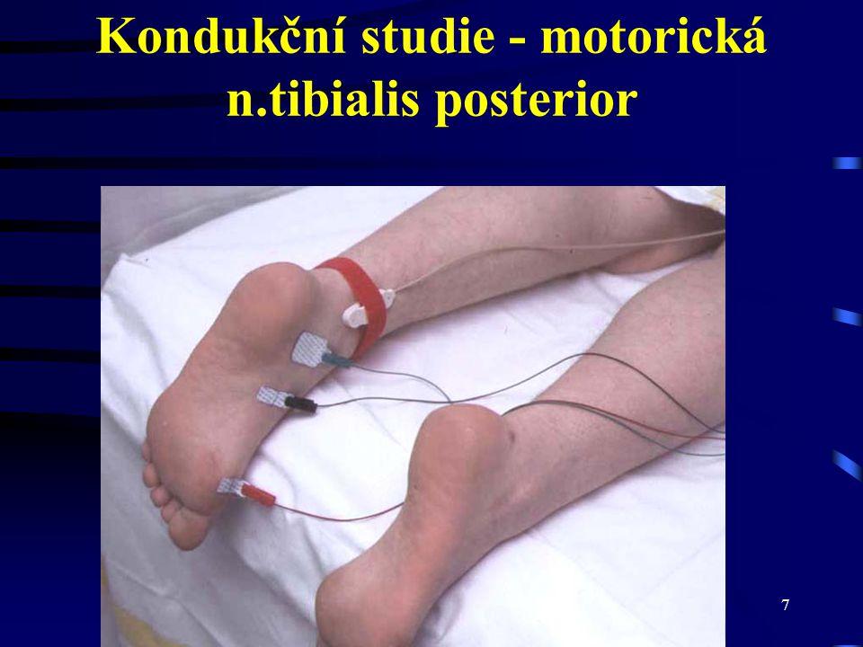 Kondukční studie - motorická n.tibialis posterior