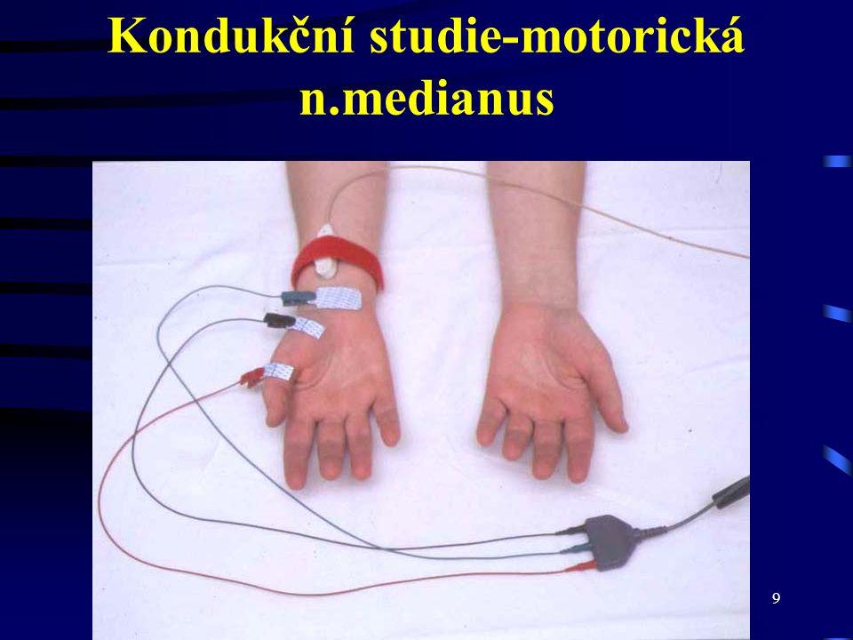 Kondukční studie-motorická n.medianus