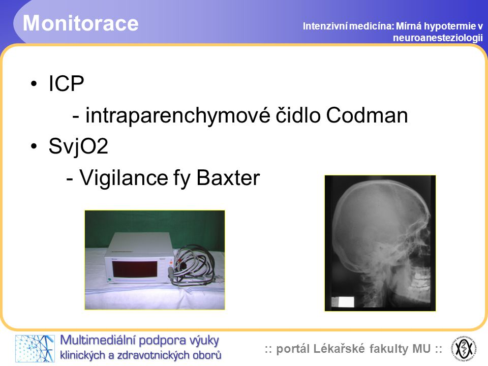 - intraparenchymové čidlo Codman SvjO2 - Vigilance fy Baxter