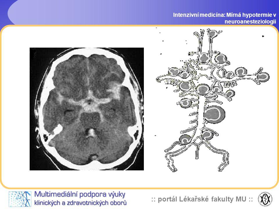 Intenzivní medicína: Mírná hypotermie v neuroanesteziologii