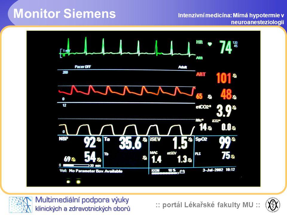 Monitor Siemens Intenzivní medicína: Mírná hypotermie v neuroanesteziologii