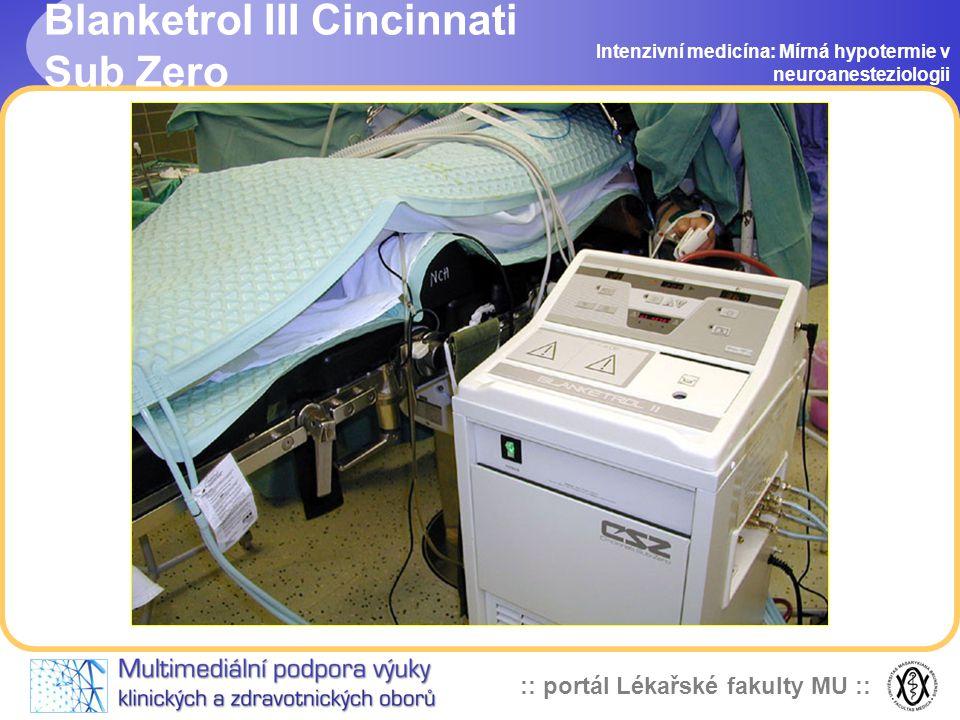 Blanketrol III Cincinnati Sub Zero