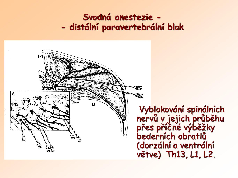 Svodná anestezie - - distální paravertebrální blok