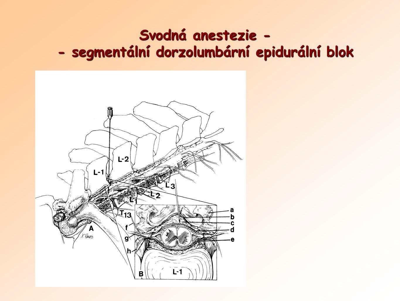Svodná anestezie - - segmentální dorzolumbární epidurální blok