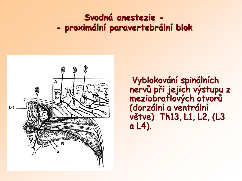 Svodná anestezie - - proximální paravertebrální blok