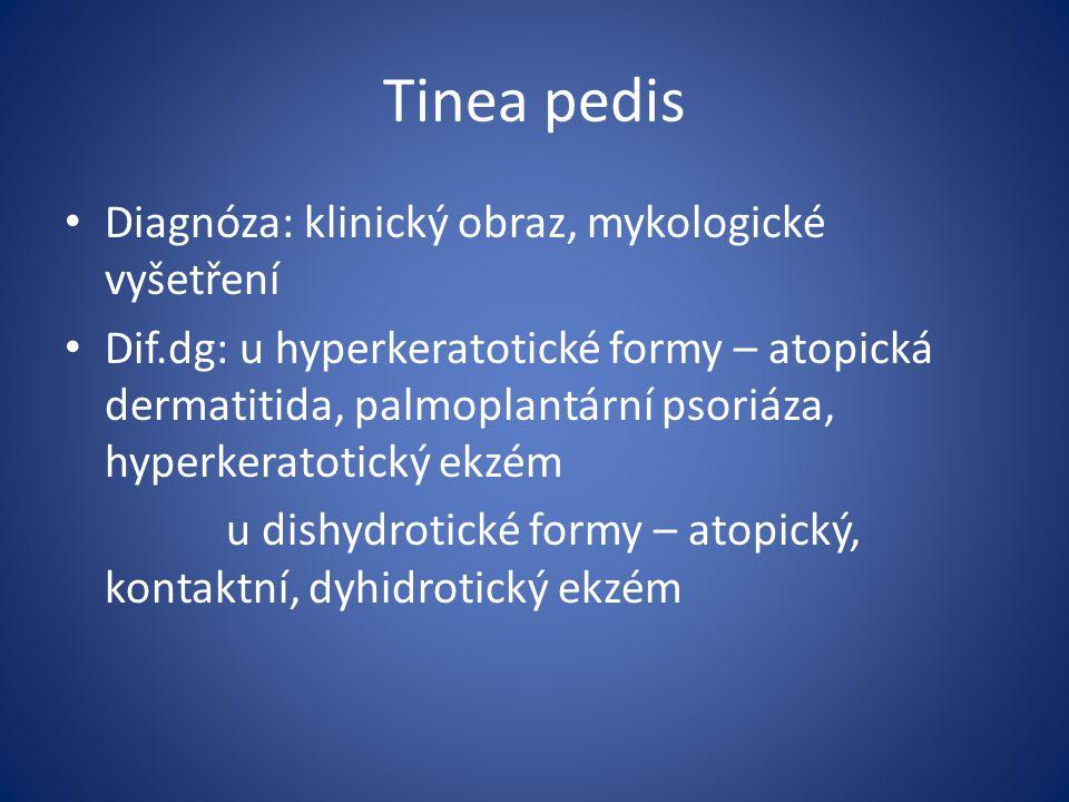 Tinea pedis Diagnóza: klinický obraz, mykologické vyšetření
