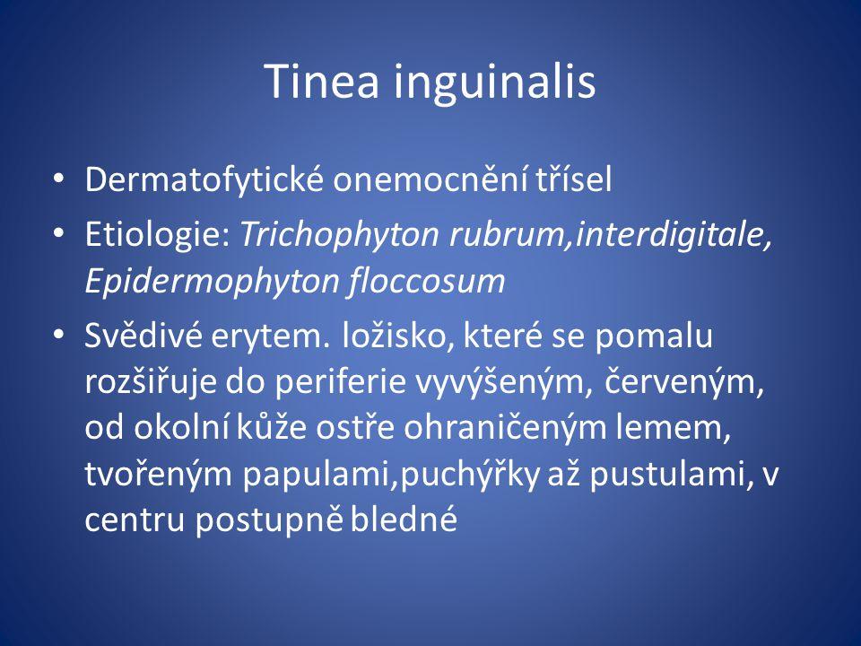 Tinea inguinalis Dermatofytické onemocnění třísel