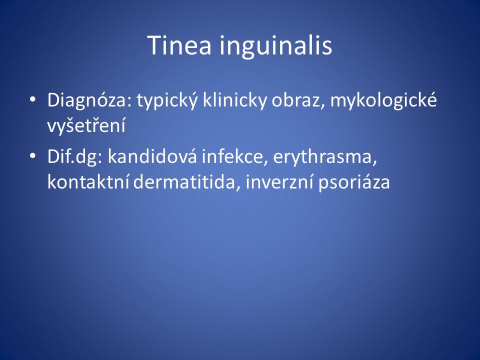 Tinea inguinalis Diagnóza: typický klinicky obraz, mykologické vyšetření.
