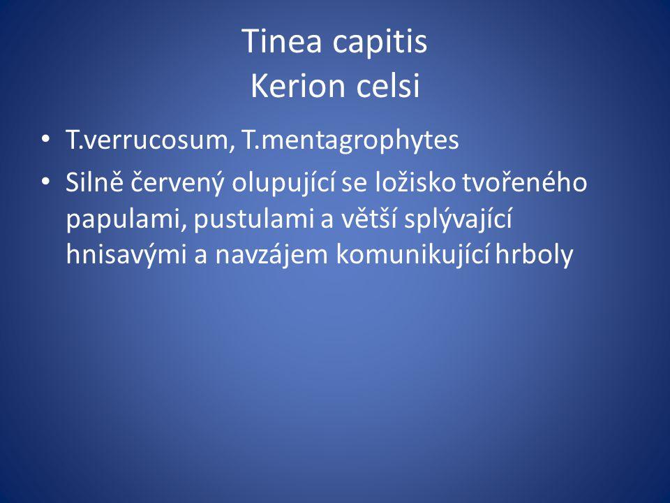 Tinea capitis Kerion celsi