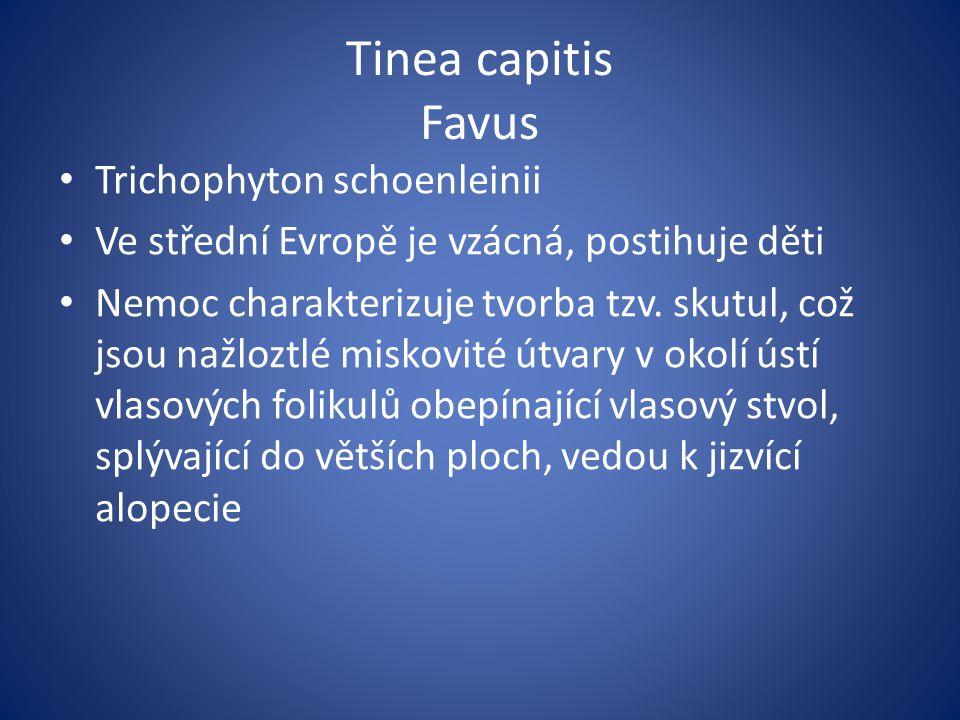 Tinea capitis Favus Trichophyton schoenleinii