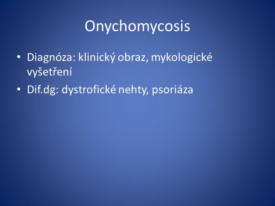 Onychomycosis Diagnóza: klinický obraz, mykologické vyšetření