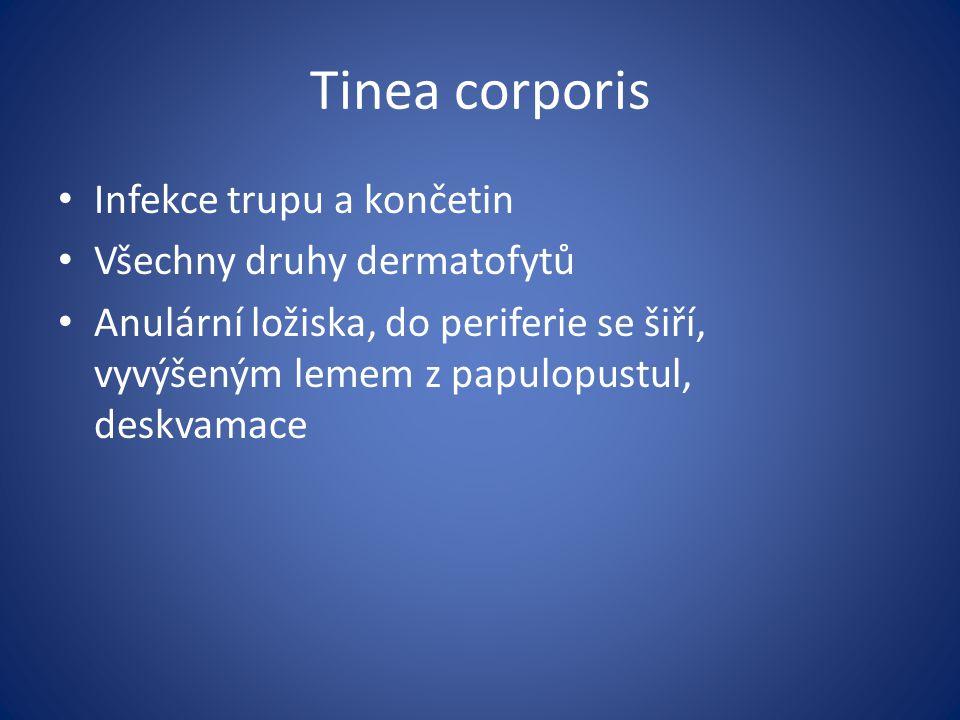 Tinea corporis Infekce trupu a končetin Všechny druhy dermatofytů