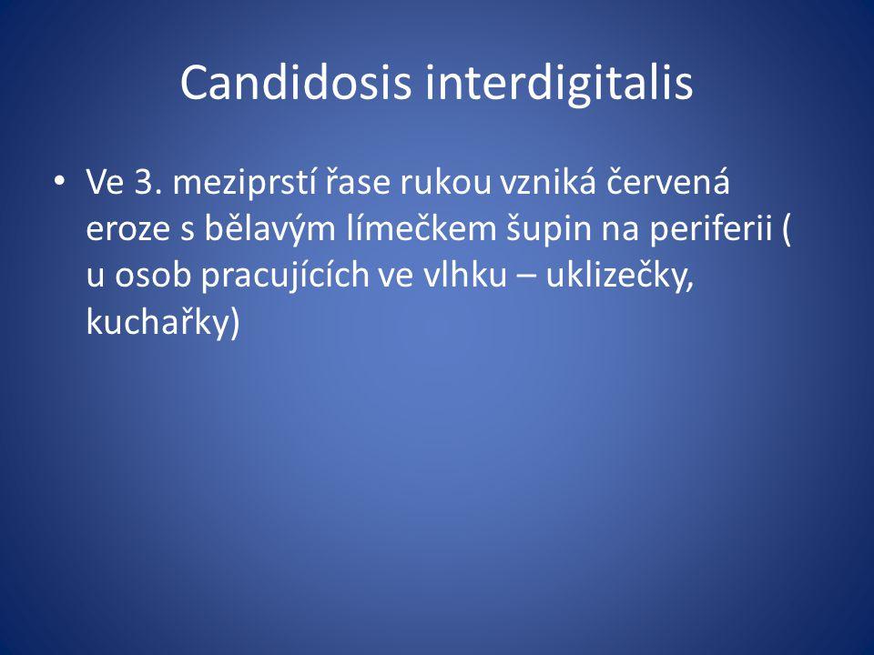 Candidosis interdigitalis