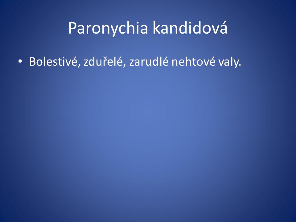 Paronychia kandidová Bolestivé, zduřelé, zarudlé nehtové valy.