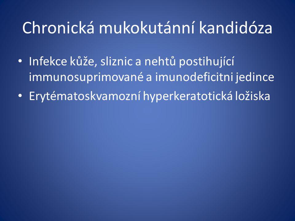 Chronická mukokutánní kandidóza