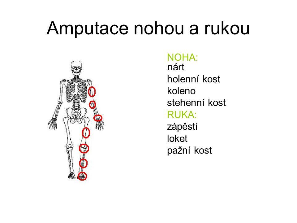 Amputace nohou a rukou NOHA: nárt holenní kost koleno stehenní kost