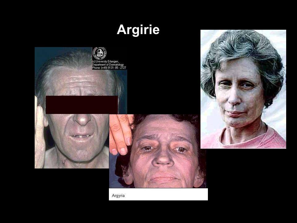 """Stříbro (Ag) Argirie """"ARGYRIE"""