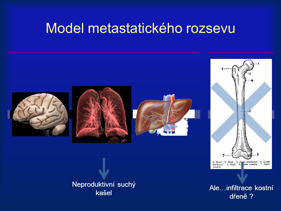 Model metastatického rozsevu