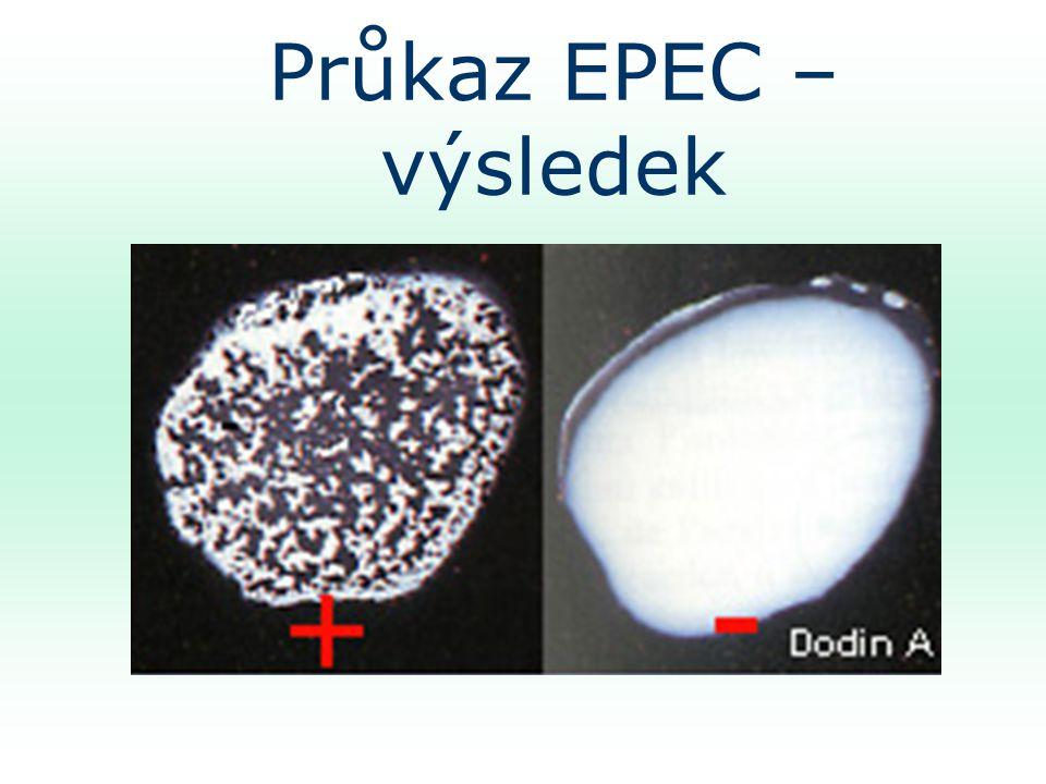 Průkaz EPEC – výsledek