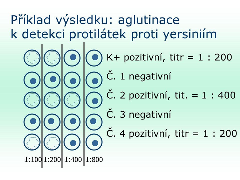 Příklad výsledku: aglutinace k detekci protilátek proti yersiniím