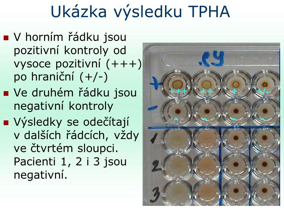 Ukázka výsledku TPHA V horním řádku jsou pozitivní kontroly od vysoce pozitivní (+++) po hraniční (+/-)