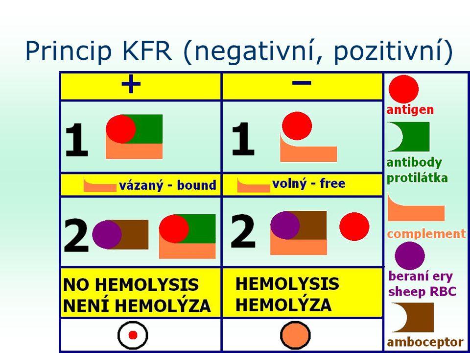 Princip KFR (negativní, pozitivní)