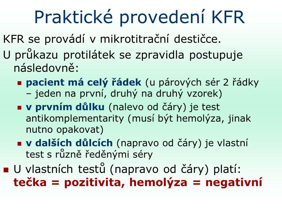 Praktické provedení KFR
