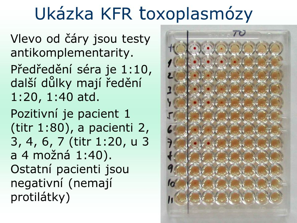 Ukázka KFR toxoplasmózy