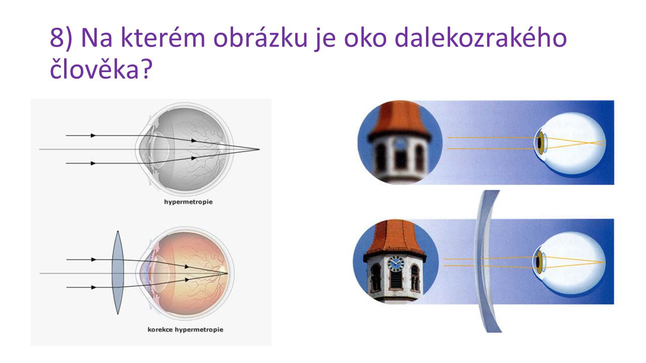 8) Na kterém obrázku je oko dalekozrakého člověka