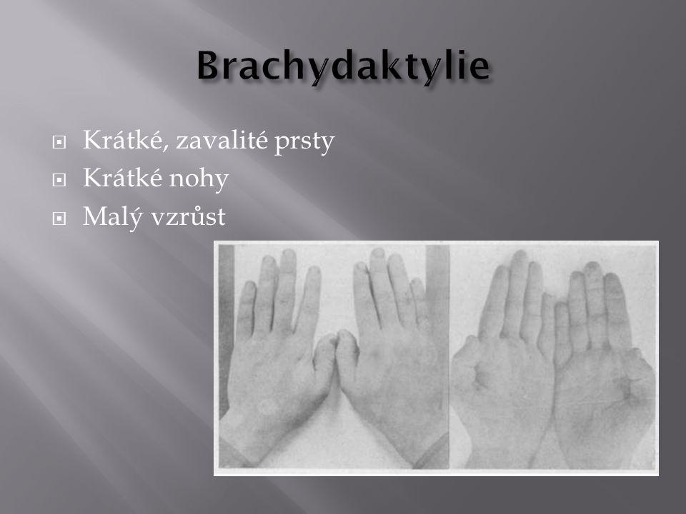 Brachydaktylie Krátké, zavalité prsty Krátké nohy Malý vzrůst